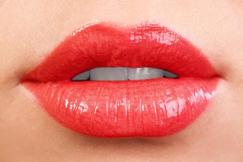 Newcastle lip filler